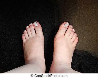 swollen feet - swollen feet