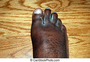 Swollen foot. - African american man with a swollen foot.
