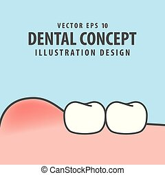 Swollen gums with teeth illustration vector on blue...