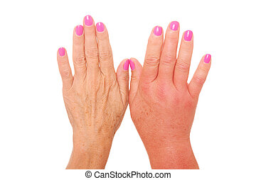 Swollen hand - A picture of female hands one swollen because...
