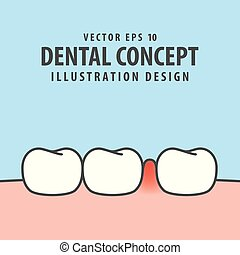 Swollen inflammation gums with teeth illustration vector on...