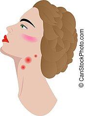 Swollen lymph nodes in woman's neck
