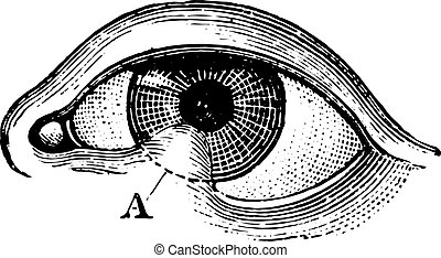 Symblepharon of the lower eyelid, vintage engraving.