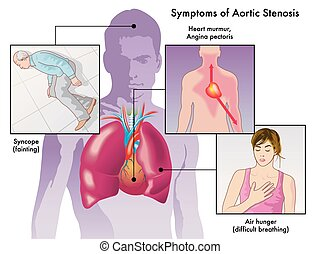 medical illustration of the symptoms of aortic stenosis