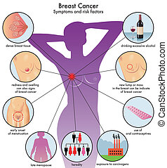 Symptoms of breast cancer - medical illustration of symptoms...