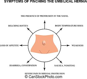 Symptoms of pinching the umbilical hernia. Infographics. ...