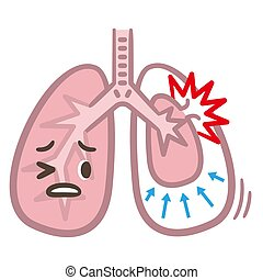 symptoms of pneumothorax lung vector