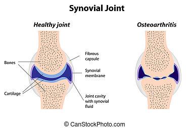 synovial, 聯接, 正常, 以及, 關節炎