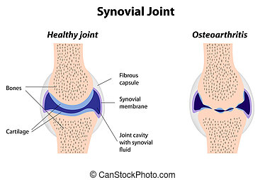 synovial, conjunto, normal, e, artrite