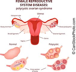 système reproducteur femelle