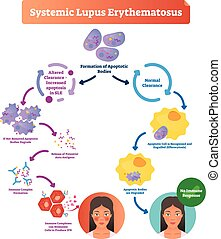 Systemic lupus erythematosus labeled diagram with normal and...