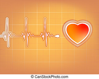 Tehát a kardiogram nem mutat magas vérnyomást - Doctorof Magyarország