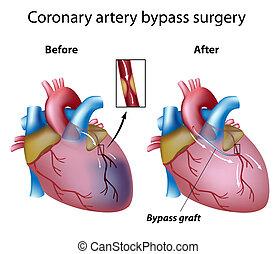 szív, kitérő, sebészet, eps8