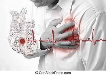 szív, megüt, támad, háttér, kardiogram
