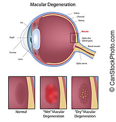 szem, macular, elfajulás