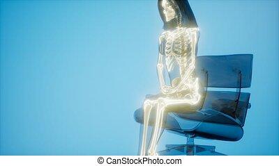 szkielet, ludzki, radiografia, skandować