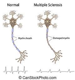 szklerózis, összetett, eps8
