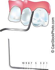 szonda, periodontal