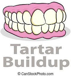 tártaro, acúmulo, ligado, dentes