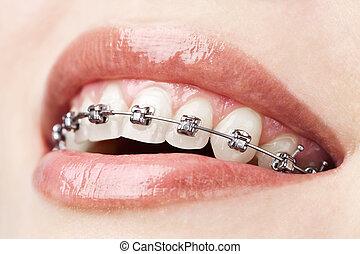 tänder, med, hängslen