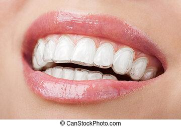 tänder, med, vitfärgning, bricka