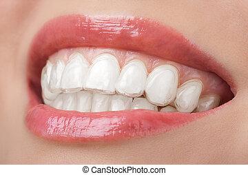 tänder, med, vitfärgning, bricka, le, dental