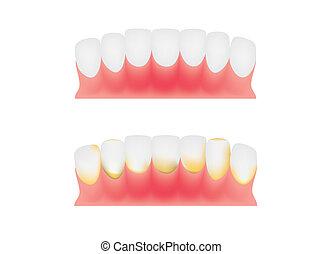tænder, og, gums, dentale, plaque