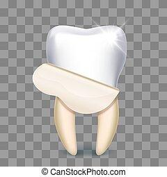 técnico, dental, dente, whitening, folheado