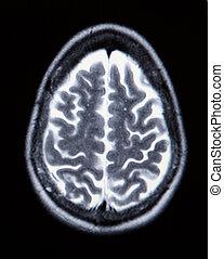 tényleges, mri/, (arteries), agyonüt, (magnetic, vasculature, együtthangzás, monochrom, angiogram), mra