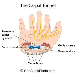 túnel, síndrome, carpal, eps8