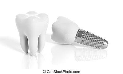 tand, en, dentaal, implantaat, vrijstaand, op wit,...