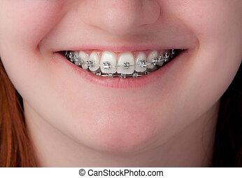 tand varsamhet, concept., tänder, med, hängslen