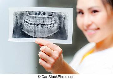 tandlæge, kigge x-ray hos, billede