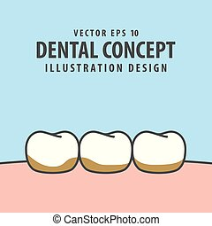 Tartar or calculus teeth illustration vector on blue background. Dental concept.