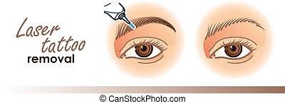 tatouage, laser, icônes, déménagement, procédure, sourcil,...