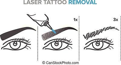 tatouage, laser, maquillage, sourcil, déménagement,...
