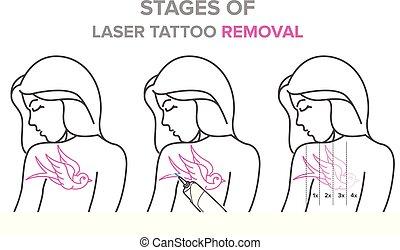 tatouage, laser, vecteur, illustrations, étapes,...