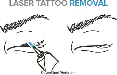 tatouage, procédure, laser, microblading, icônes, eyeliner,...