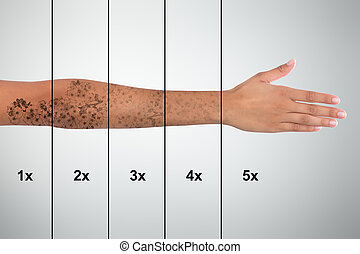Tattoo Removal On Woman's Hand - Laser Tattoo Removal On...
