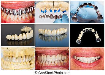 Photographic documentation of the technical steps of dental ceramic bridge.