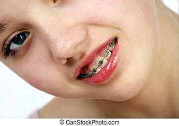 Teen problems - Face of teen girl with brackets on her teeth