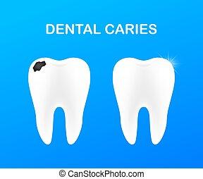 teeth., 發展, 牙齒 關心, 健康, illustration., concept., 矢量, caries., 階段