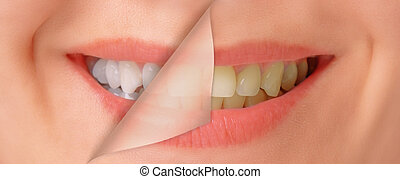 Female smile, teeth before and after whitening, close-up