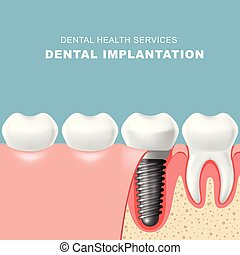 Teeth and dental implantat inserted into gum - tooth implantation