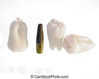 Teeth and implants