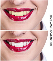Teeth before and after bleaching treatment