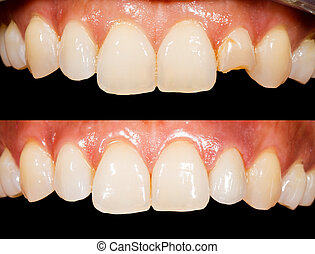 Teeth before and after treatment
