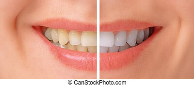 Teeth before and after whitening - Close-up image of female...