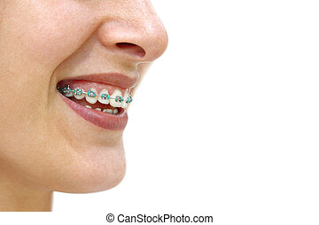 Teeth Braces - Detail of young womans smile showing white ...