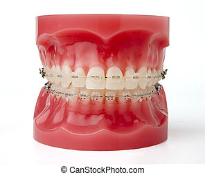 teeth brackets model